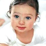 Фото - Фото - Алергічний риніт у маленької дитини