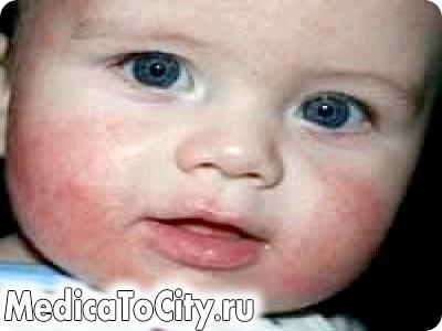 Фото - Алергія на обличчі: симптоми