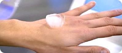 Фото - Алергія на руках - причини, симптоми, лікування у дитини, у дорослих. Види алергії на руках