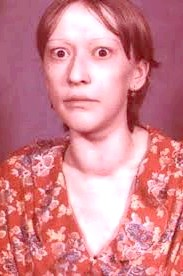 Фото - гіперплазія щитовидної залози