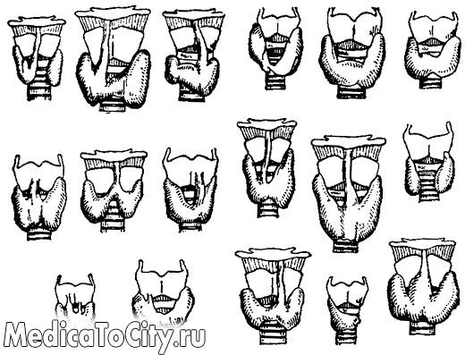 Фото - Варіанти форми і аномалії щитовидної залози (по Маршаллу)