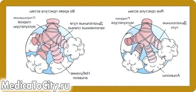 Фото - Чому з'являється кашель при астмі?