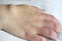 Фото - Фото атероми на руці