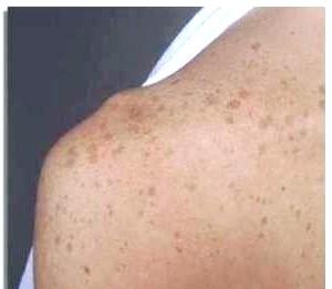 Фото - Пігментні плями на правому плечі людини