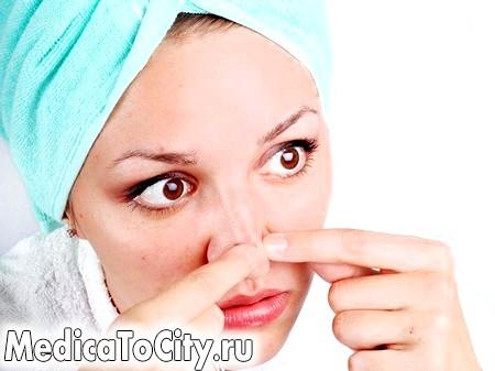 Фото - Це просто кошмар! Ці чорні точки скрізь: на носі, на лобі і навіть у вухах!