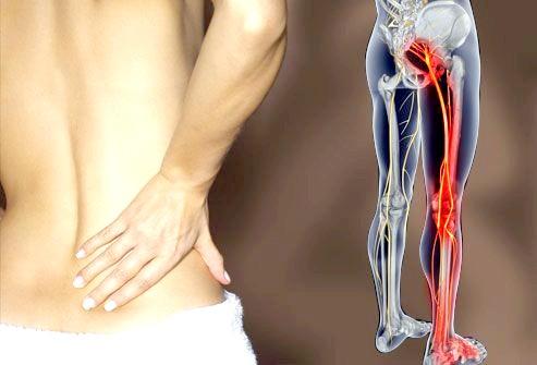 Фото - Опис патологій, що провокують болі в попереку, що віддають у ногу