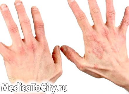 Фото - Фото алергічного дерматиту