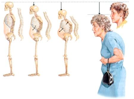 Фото - інволютивними остеопороз