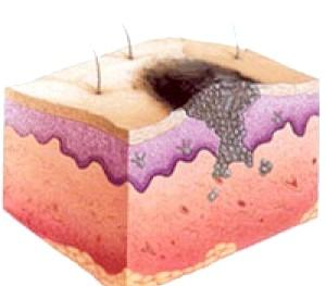 Фото - Схематичне зображення розташування меланоми на шкірі