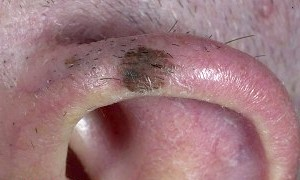 Фото - Фото меланоми на вусі людини