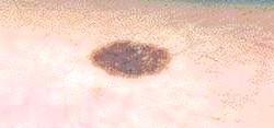 Фото - Прояви невуса на шкірі людини