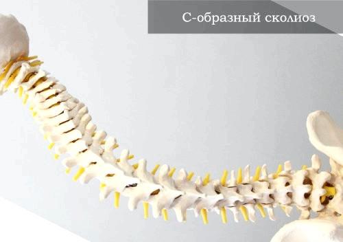 Фото - с-подібний сколіоз - це фронтальне викривлення хребта з утворенням однієї дуги деформації