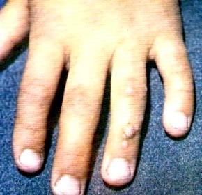 Фото - Фото вульгарних бородавок на пальці руки