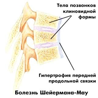 Фото - вид клиновидних хребців при синдромі Шермана-Мау