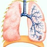 Фото - Фото - Дисемінований туберкульоз в організмі людини