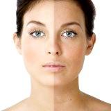 Фото - Фото - Домашні рецепти для відбілювання шкіри обличчя