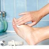 Фото - Фото - Грибкові захворювання шкіри і лікування