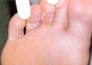 Фото - грибок між пальців