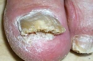 Фото - грибок нігтя на нозі