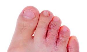 Фото - грибок на ногах