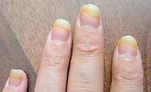 Фото - грибок на пальцях рук
