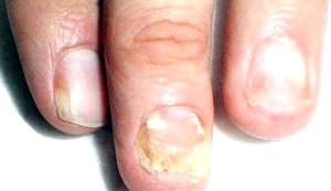 Фото - грибок нігтів на руках