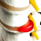 Фото - Фото - Грижа хребта профілактика і лікування без операції