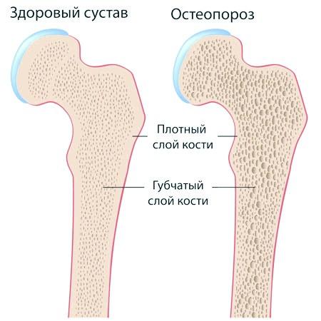Фото - Кость при остеопорозі