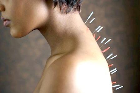 Фото - голковколювання при остеохондрозі