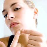 Фото - Фото - Як позбутися прищів за допомогою народних засобів