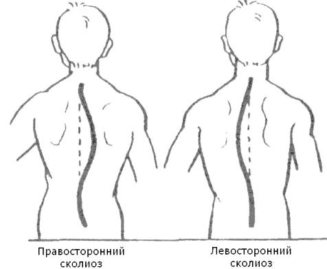 Фото - при лівосторонньому сколіозі праве плече опущено сильніше лівого