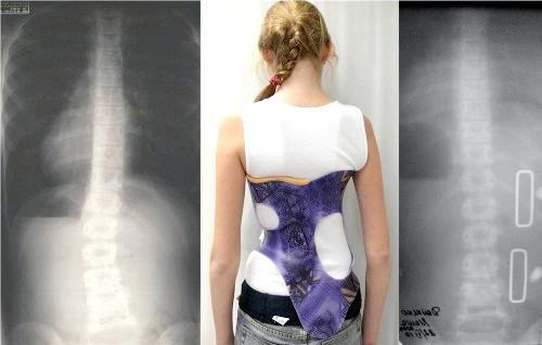 Фото - лікування сколіозу хребта у підлітків носінням корсета дає відчутний ефект