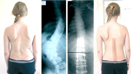 Фото - оперативне лікування підліткового сколіозу застосовується при 3 і 4 стадії патології