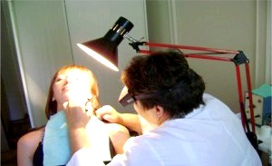 Фото - Фото процесу лікування бородавок на обличчі