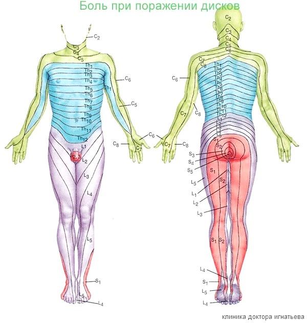 Фото - іррадіація болю при ураженні міжхребцевих дисків дифузійної протрузією