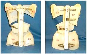 Фото - ліонський корсет для виправлення сколіозу