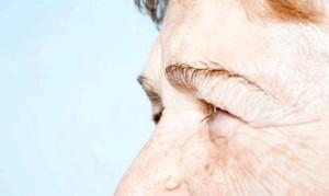 Фото - Фото бородавки на обличчі у літньої людини