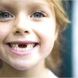 Фото - Фото - Коли змінюються молочні зуби у дітей