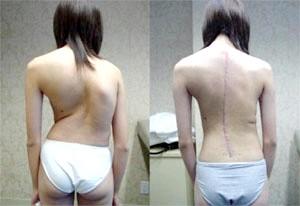 Фото - Результат після операції