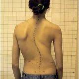 Фото - Фото - Лікування сколіозу викривлення хребта