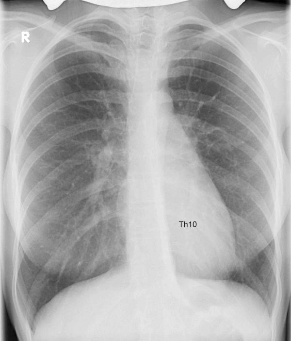 Фото - знімок рентгена сколіозу грудної клітки