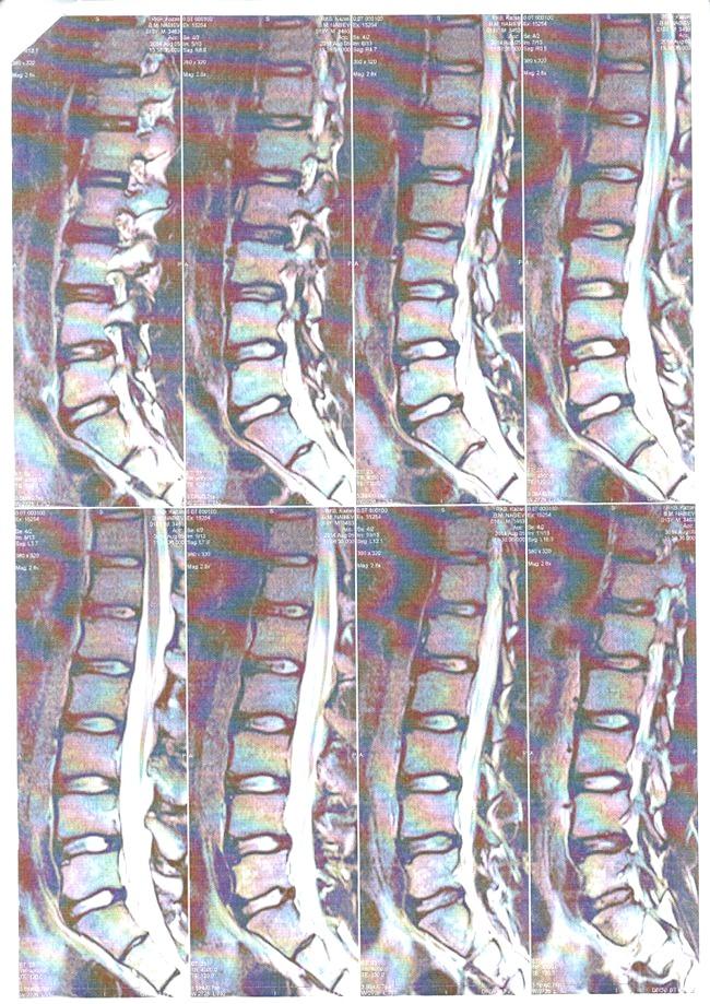 Фото - МРТ попереково-крижового відділу