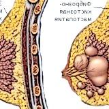 Фото - Фото - Мастопатія доброякісне захворювання молочної залози