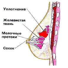 Фото - Ущільнення в грудях