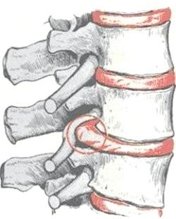 Фото - Медіанна грижа міжхребцевого диска хребта