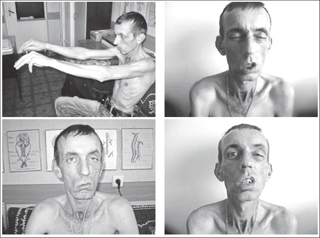 Фото - синдром Ландузі-Дежерина