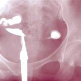 Фото - Фото - Непрохідність маткових труб лікування