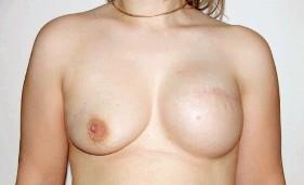 Фото - В результаті лампектомія