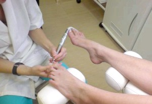 Фото - Фото процедури лікування мозолів за допомогою шліфування