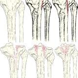 Фото - Фото - Операції при переломі великої гомілкової кістки